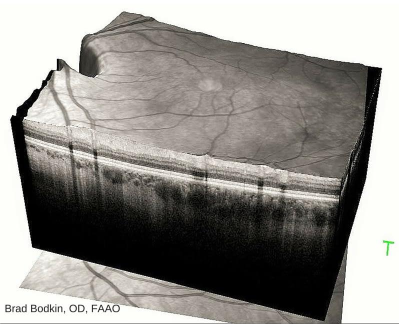 3D OCT Image